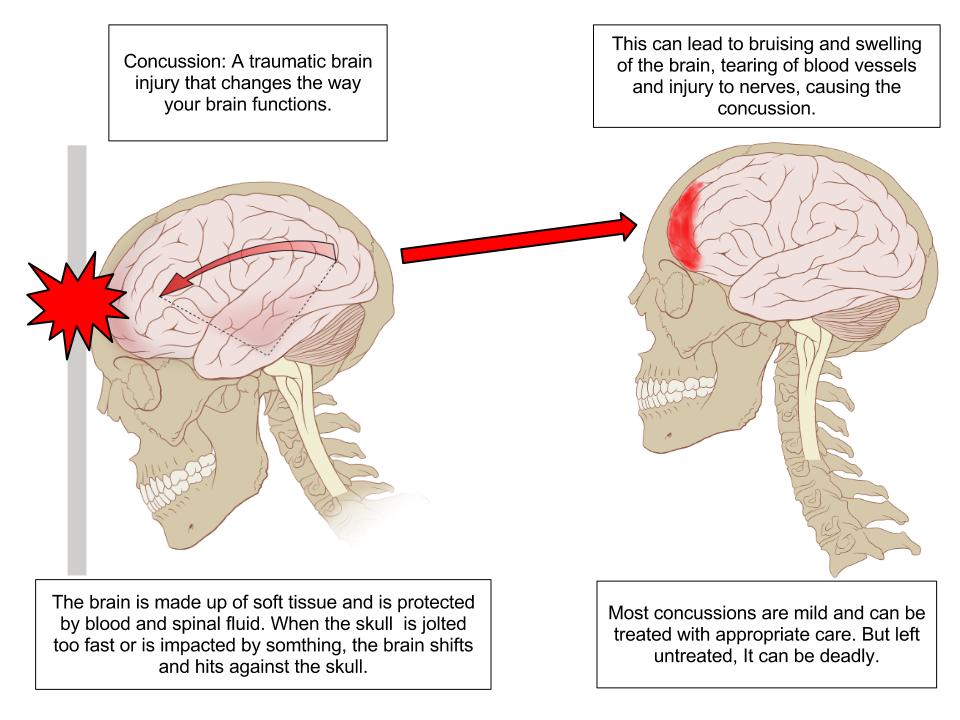 Dorjee-Concussion Anatomy